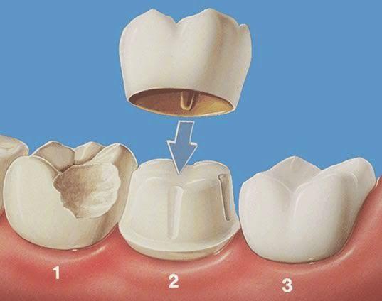 Chữa răng sâu mất bao nhiêu tiền 3