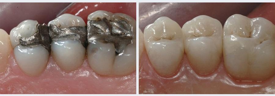 Chữa răng sâu mất bao nhiêu tiền 2