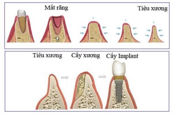 Ghép xương răng