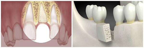 ghép xương răng bao nhiêu tiền 2