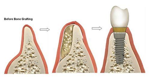 ghép xương răng ở đâu an toàn 2