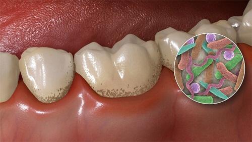 lấy cao răng có an toàn không 1