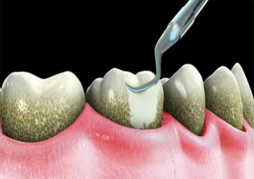 lấy cao răng có an toàn không 3