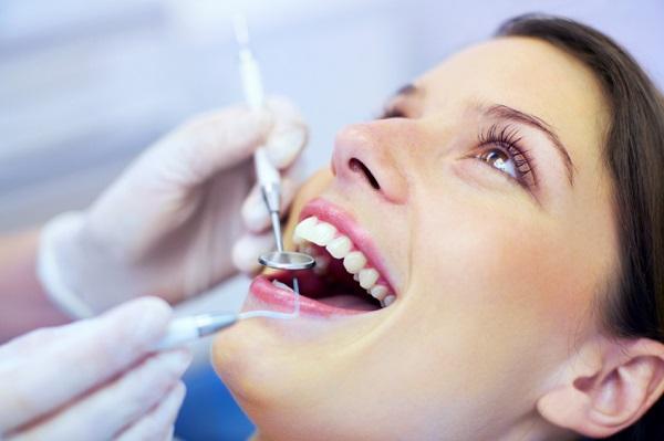 lấy cao răng để làm gì