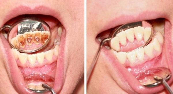 lấy cao răng để làm gì 2