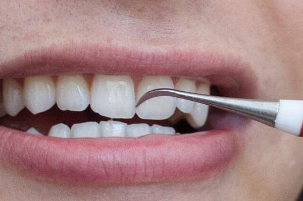 lấy cao răng mấy tháng một lần 2