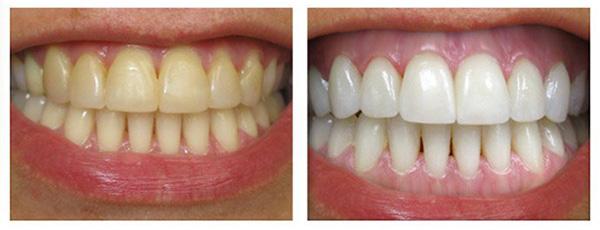 lấy cao răng mấy tháng một lần 4