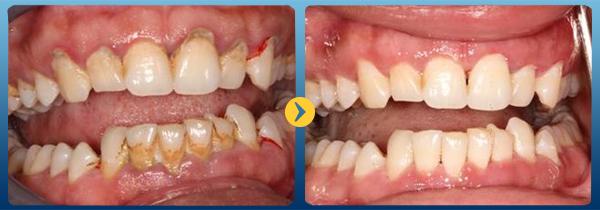 Lấy cao răng xong nên ăn gì
