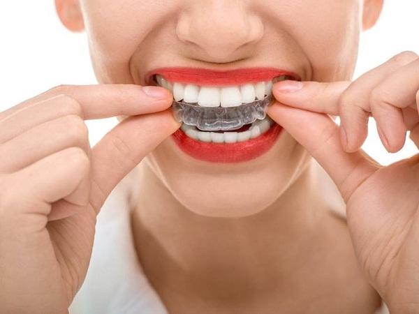 Mẹo chữa bệnh nghiến răng 4