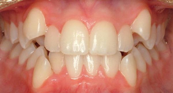 ngủ nghiến răng là người như thế nào 2