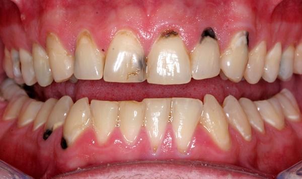ngừa sâu răng