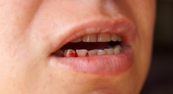 nhổ răng bị chảy máu