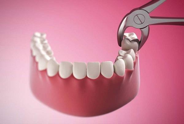 nhổ răng ở đâu tốt