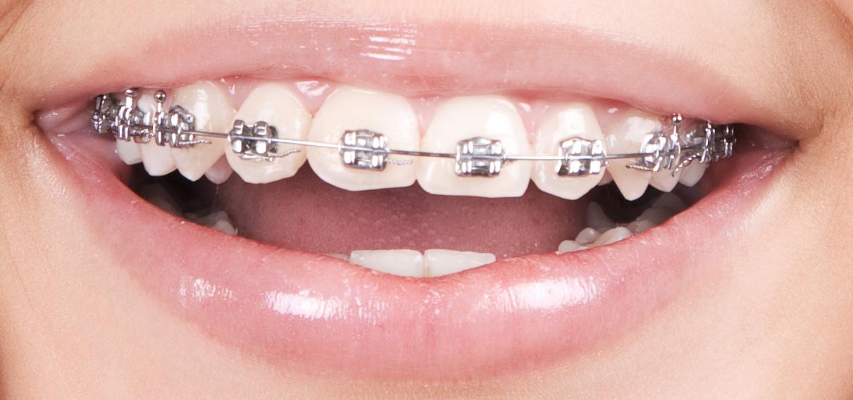 niềng răng loại nào nhanh nhất 1