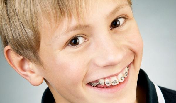 niềng răng loại nào nhanh nhất 2