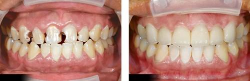 Sâu răng chữa như thế nào 3