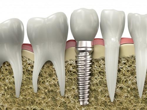 Sâu răng chữa như thế nào 5