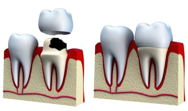 sâu răng có chữa được không 4