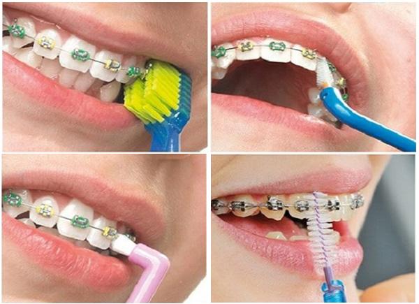niềng răng 4