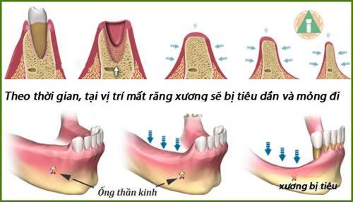 ghép xương răng ở đâu an toàn