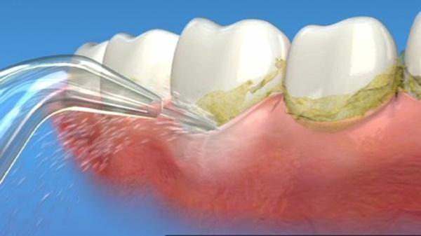 lấy-cao-răng-có-trắng-răng-không-2