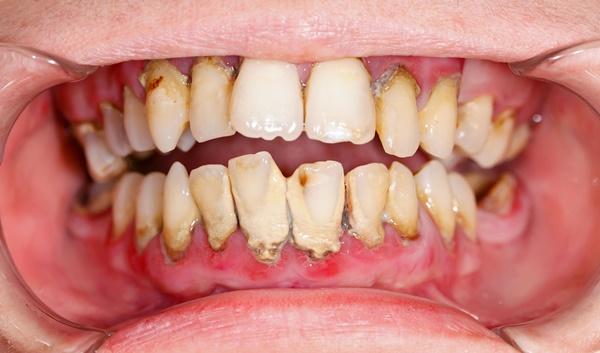 lấy-cao-răng-có-trắng-răng-không