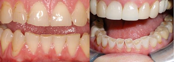 răng nhạy cảm là gì 2