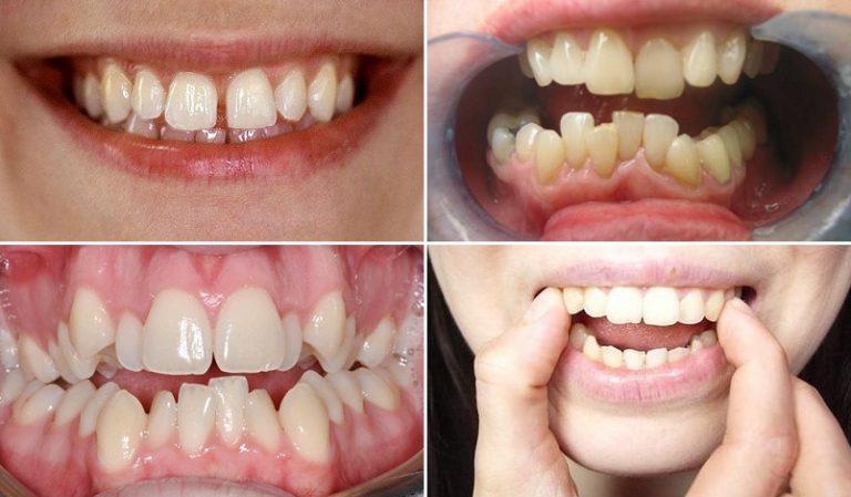 Sự thay đổi của răng trước và sau khi niềng