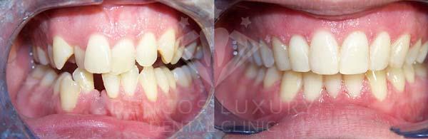 Răng thay đổi rất nhiều sau khi niềng mà không sợ lộ mắc cài