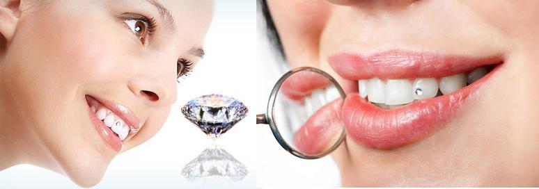 lưu ý khi làm răng đính kim cương