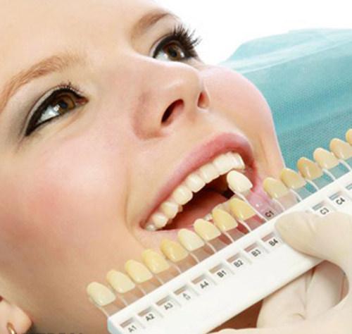tẩy trắng răng bằng máng bao lâu